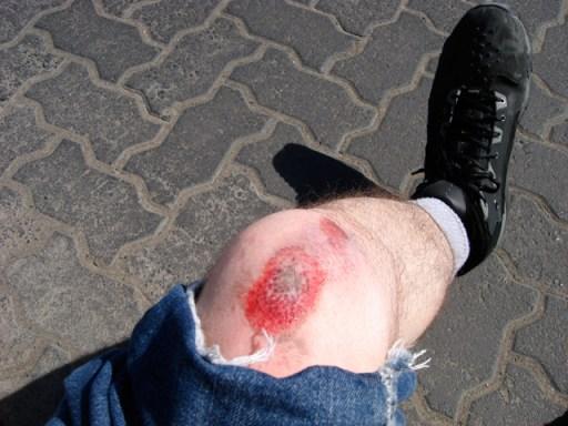 kneescrape