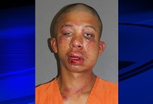 Photo of Dad's 911 call: I've beaten up my son's assailant