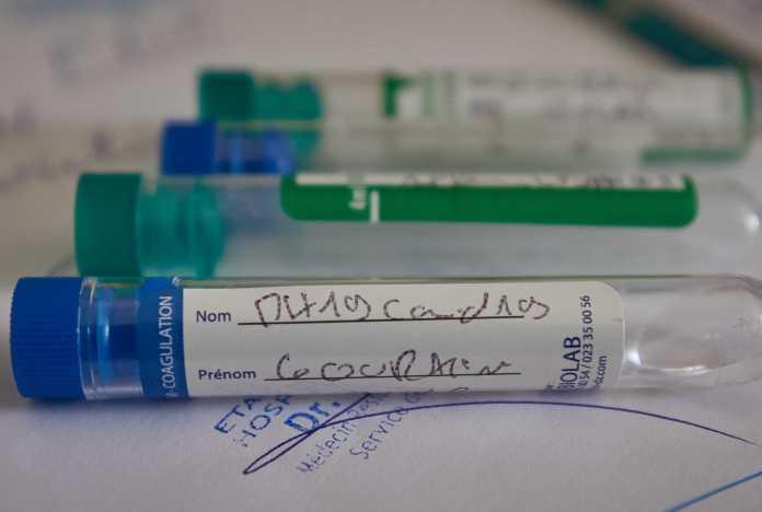 Coronavirus: 607 cas ces dernières 24H, situation inquiétante