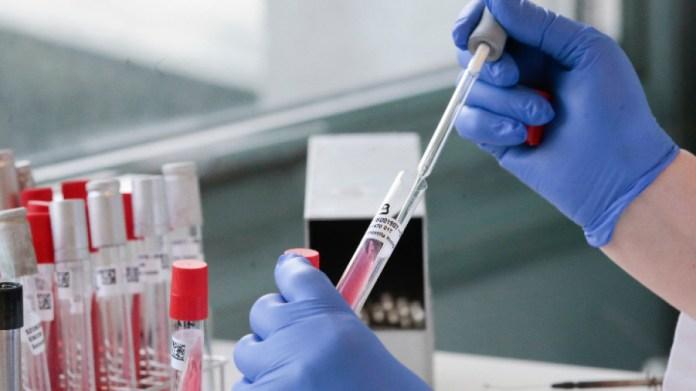 L'Algérie totalise ainsi 102.387 cas confirmés depuis le début de l'épidémie fin février 2020 dont 2812 décès