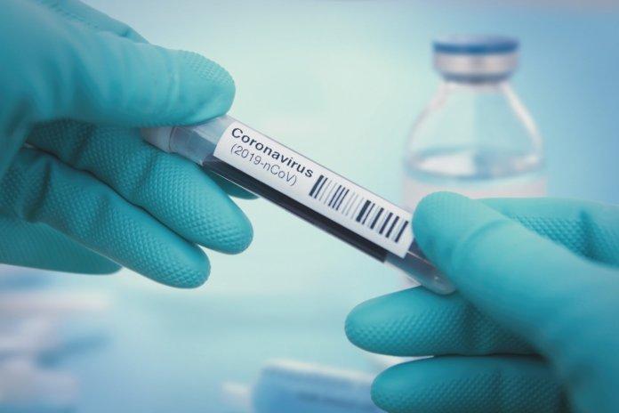 Bilan-coronavirus: 620 nouveaux cas et 12 décès en Algérie