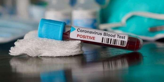Coronavirus: 285 nouveaux malades et 20 décès en Algérie