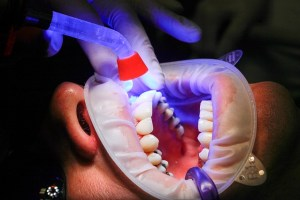multiple filled teeth