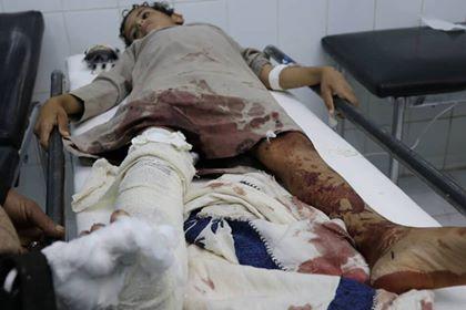 إصابة طفل بإنفجار عبوة ناسفة زرعتها الميليشيات في البيضاء