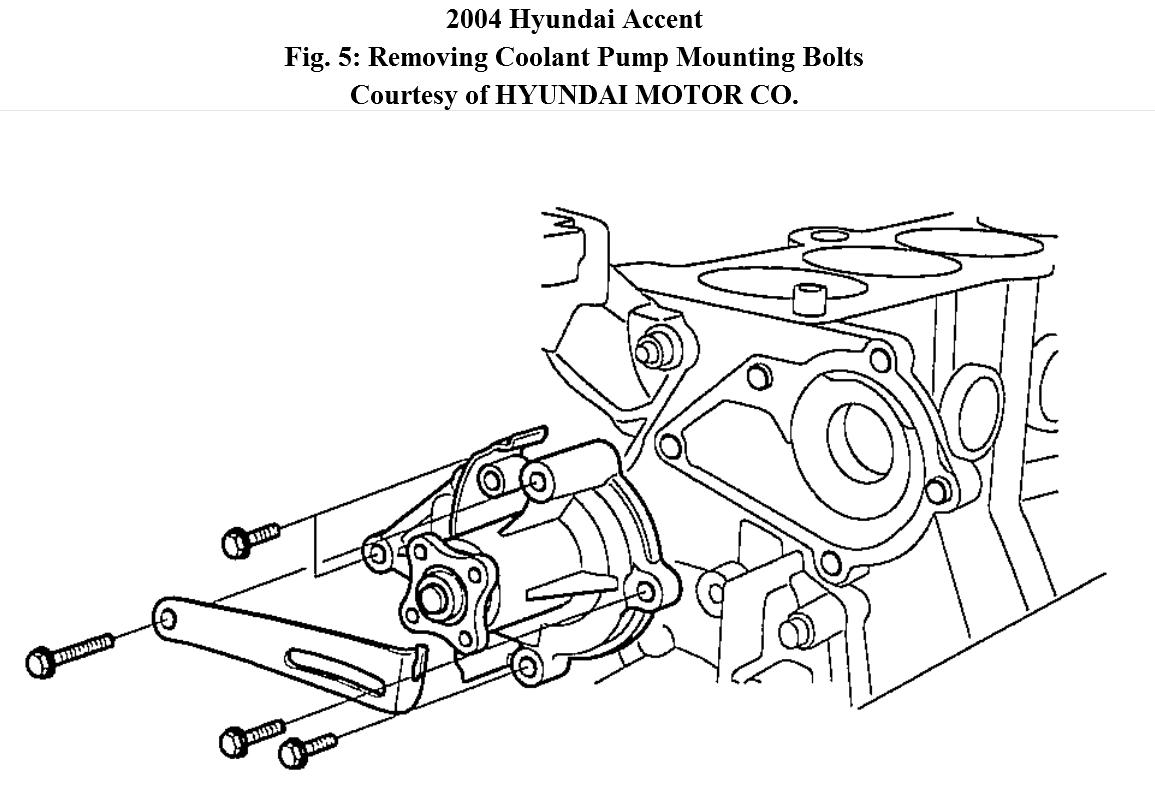 Service manual [Step By Step Engine Removal 2004 Hyundai