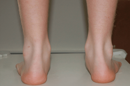 Over Pronated Foot