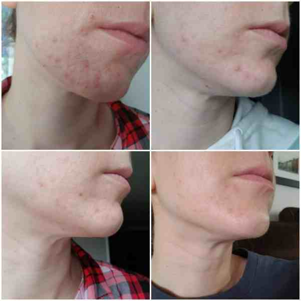 acne clearing from whole food plant based diet