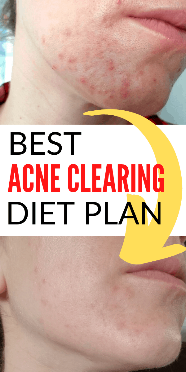 How to get rid of hormonal acne through diet. Best acne diet foods to eat, meal plan and recipes. All whole food plant based to beat inflammation and balance your hormones.
