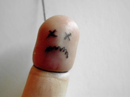 Dead finger
