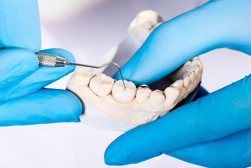 Microprostheses، مانند فنر (پوشش بر روی دندان)، به شما اجازه می دهد تا شکل دندان، رنگ، و همچنین نقص های مختلف، به عنوان مثال، شکاف بین دندان ها را تنظیم کنید.