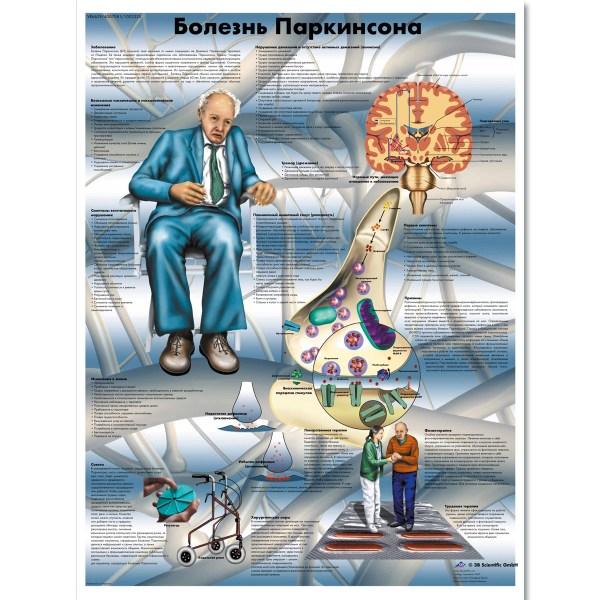 Parkinson' Disease Chart - 1002335 Vr6629l Zvr6629l