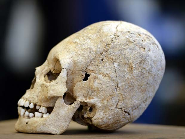 Crânio deformado do século V é achado na França (Foto: FREDERICK FLORIN / AFP)