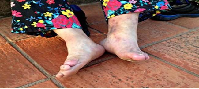 Luiza mostra as marcas da doença (Foto: Veriana Ribeiro/G1)
