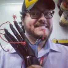 Menino ganha braço mecânico feito em impressora 3D Thiago Juc   150x150