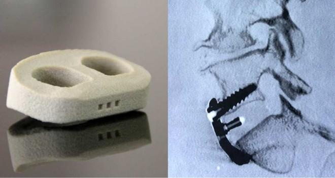 L'implant imprimé en 3D mis au point par Medicrea