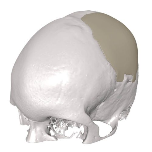Would you like a cranial implant with that?