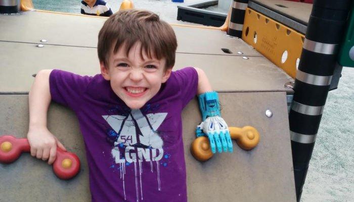 3d printed prosthetics for children