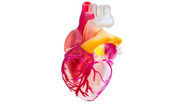 polyjet 3d printed heart