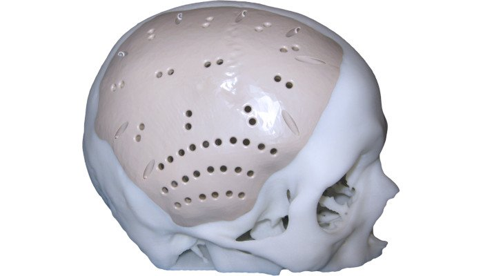 peek in the medical sector cranial implant