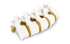3D-Systems_ProJet_MJP_5600_medical_model