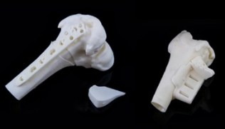 materialise_medical_3d_printing5