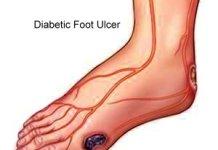القدم السكرى - عقار جديد لعلاج قرحة القدم الناتجة عن السكر
