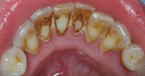 علاج تسوس الاسنان الصلبة يتطلب ازالة الاجزاء المتكلسة