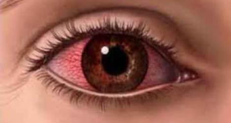 تغير لون العين يكشف ما قد تعانيه من أمراض