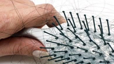 علاج تساقط الشعر من مرض السكر