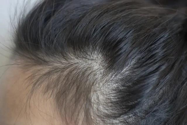 頭皮の乾燥対策にオススメの化粧水とは?シャンプーも大切です!