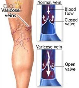 اسباب دوالي الساقين وعلاجها و طرق الوقاية منها