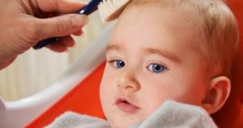 قشور فروة الرأس عند حديثى الولادة وطرق علاجها