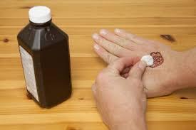 طرق طبيعية لإزالة نقوش الحنة من اليد