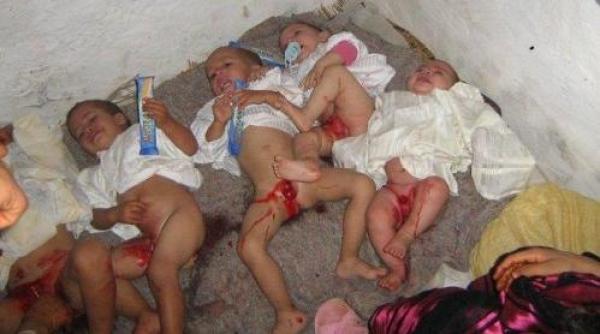 La mutilación genital femenina se resiste a desaparecer (Internet).