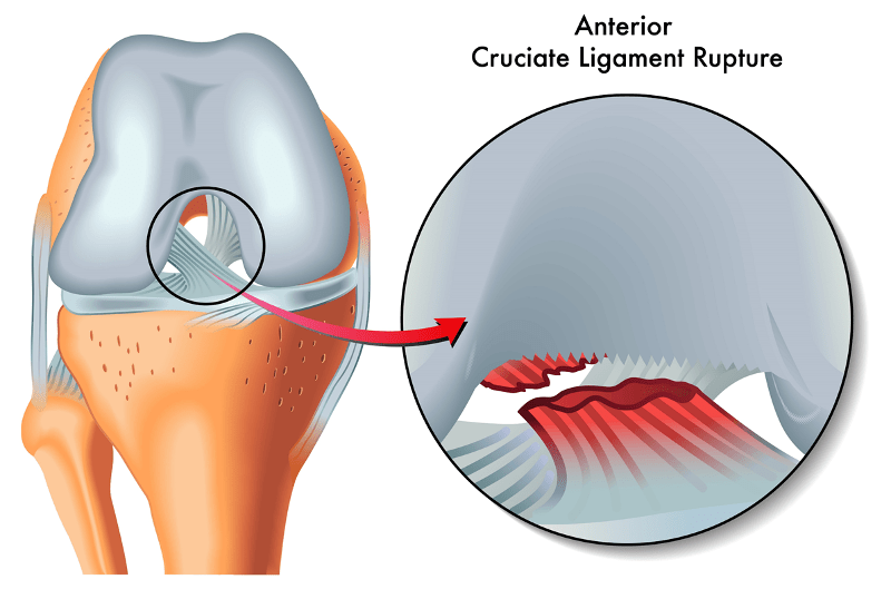 Fix Your Football Knee Injury An Essential Guide 5 A