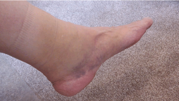 Ankle Sprain Example