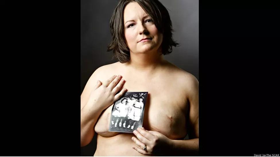 Com a foto, Sara encobre um pouco da sua cicatriz