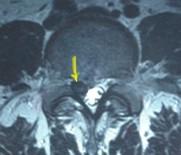 腰椎間盤突出癥-陳建良博士網站-腰椎間盤突出癥