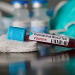 Two more Cases Of coronavirus hits lagos