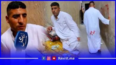 """Photo of مأساة: شاب يعاني من مرض خطير يعيش في الشارع ويقول:"""" لا أريد سوى العلاج"""""""
