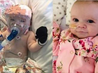 Heartbreaking photos of six-month-old 'miracle baby' who survived open heart surgery and now has Coronavirus 3