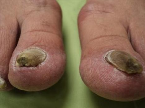 5 Local ways to treat nail fungus