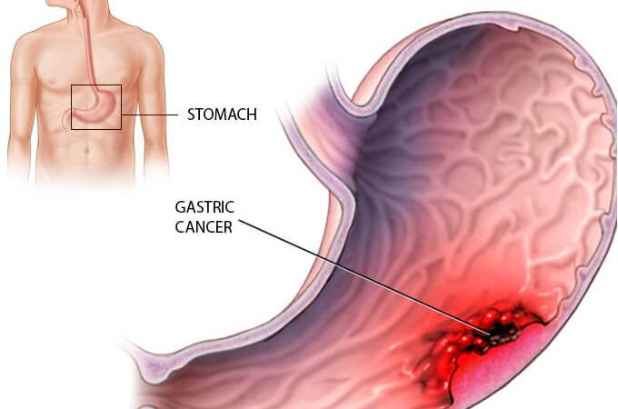 stomach cancer causes