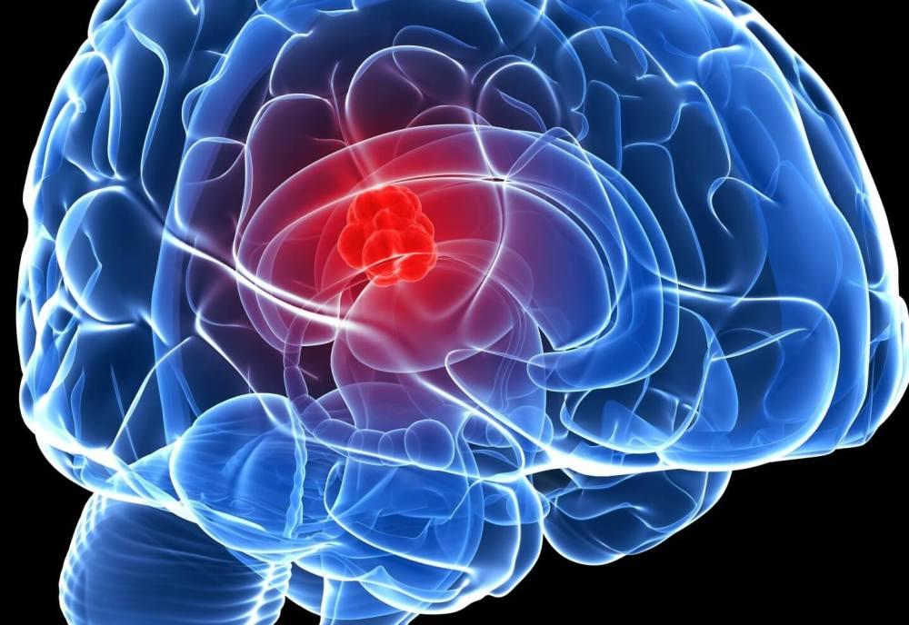 Brain cancer causes