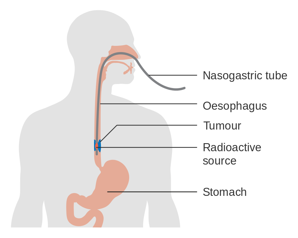 esophageal cancer causes