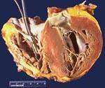 Жормикалдағы ең қолайлы нәтиже (оның ішінде Климактар кезеңіндегі әйелдер) кардиопатия. Төменгі аурудың жеткілікті гормоналды түзетуіне байланысты, дистрофиялық процестер регрессияға ұшырайды.