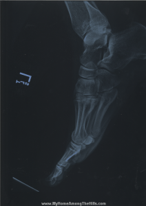 X-ray of my foot