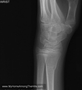 Broken wrist x-ray