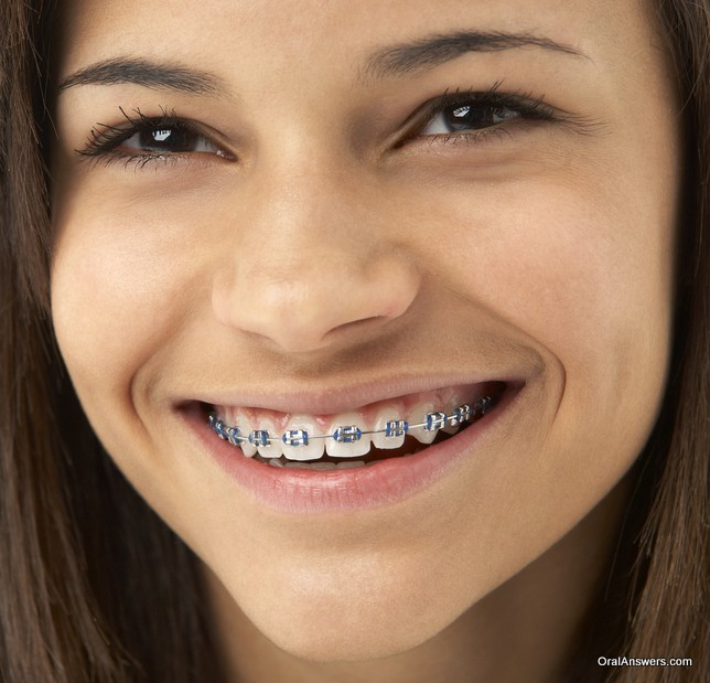 braces_dark_blue_colored_bands_teenage_girl