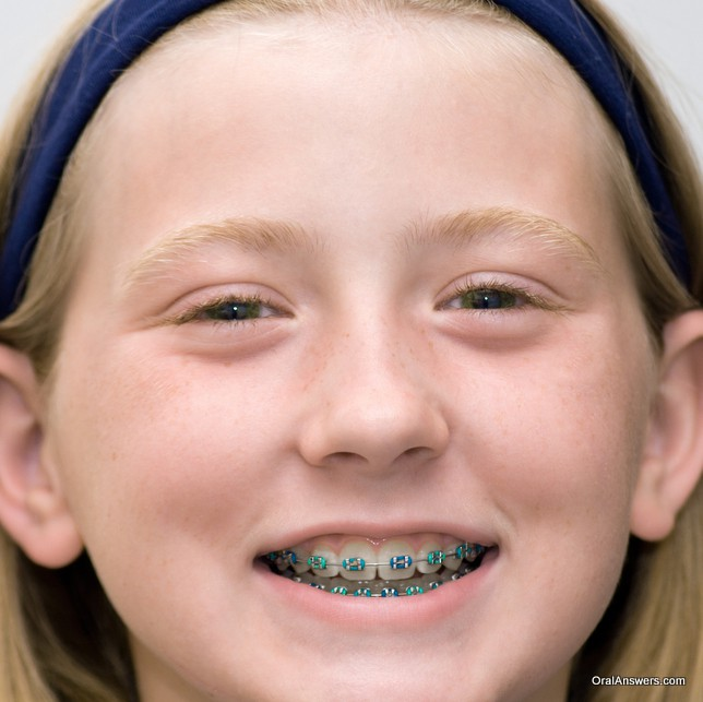 braces_green_blue_colored_bands